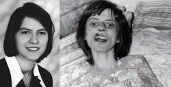 The real Anneliese Michel/The Exorcism of Emily Rose